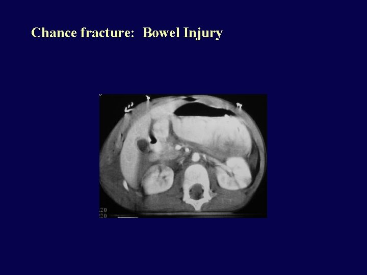 Chance fracture: Bowel Injury