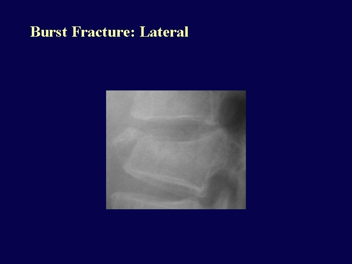 Burst Fracture: Lateral