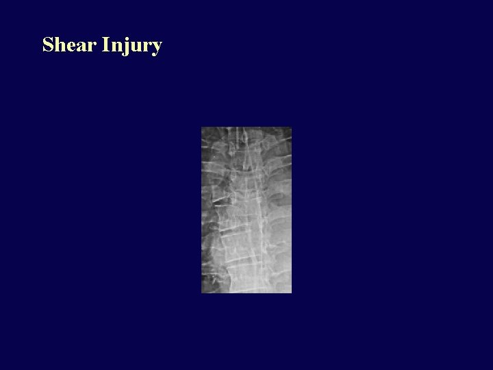 Shear Injury