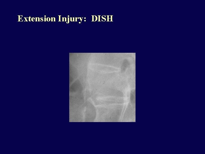Extension Injury: DISH