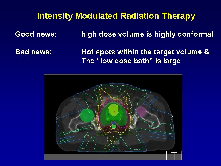 Intensity Modulated Radiation Therapy Good news: high dose volume is highly conformal Bad news:
