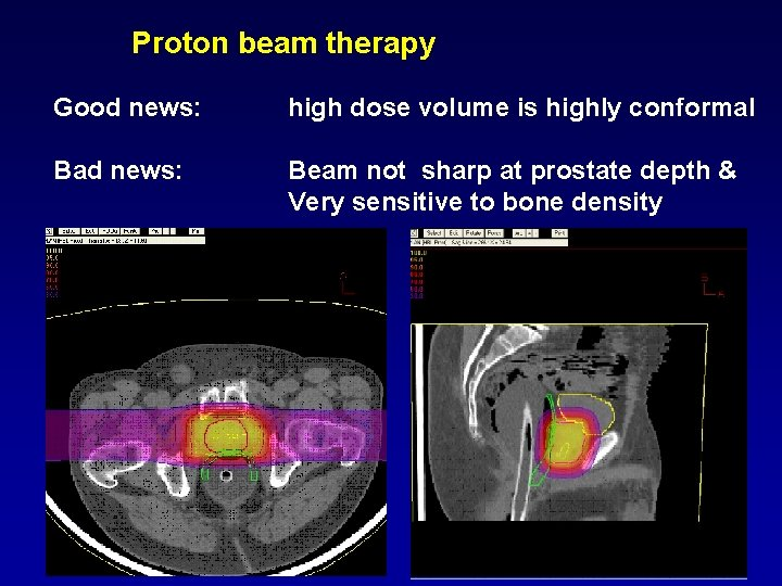 Proton beam therapy Good news: high dose volume is highly conformal Bad news: Beam