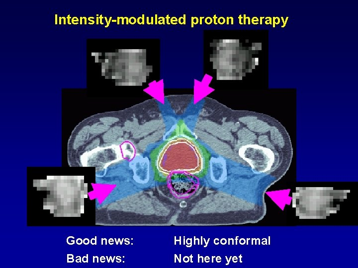 Intensity-modulated proton therapy Good news: Bad news: Highly conformal Not here yet