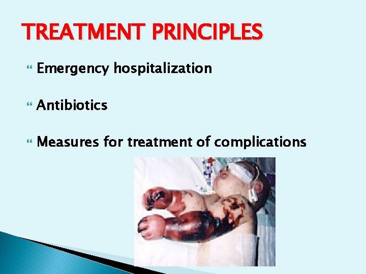 TREATMENT PRINCIPLES Emergency hospitalization Antibiotics Measures for treatment of complications