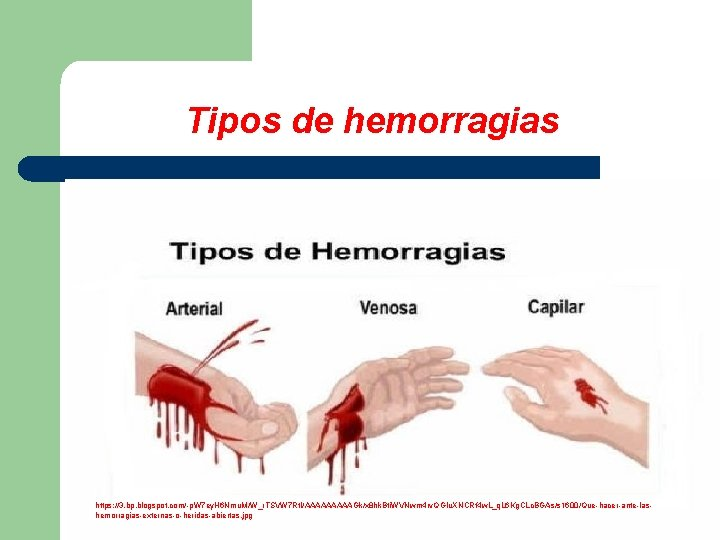 Tipos de hemorragias https: //3. bp. blogspot. com/-p. W 7 ey. H 6 Nmu.