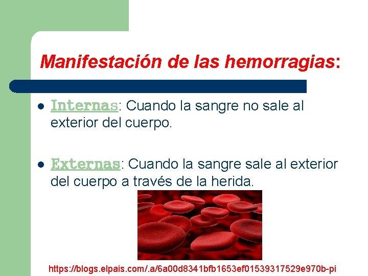 Manifestación de las hemorragias: l Internas: Cuando la sangre no sale al exterior del