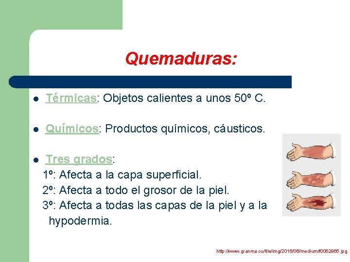 Quemaduras: l Térmicas: Objetos calientes a unos 50º C. l Químicos: Productos químicos, cáusticos.
