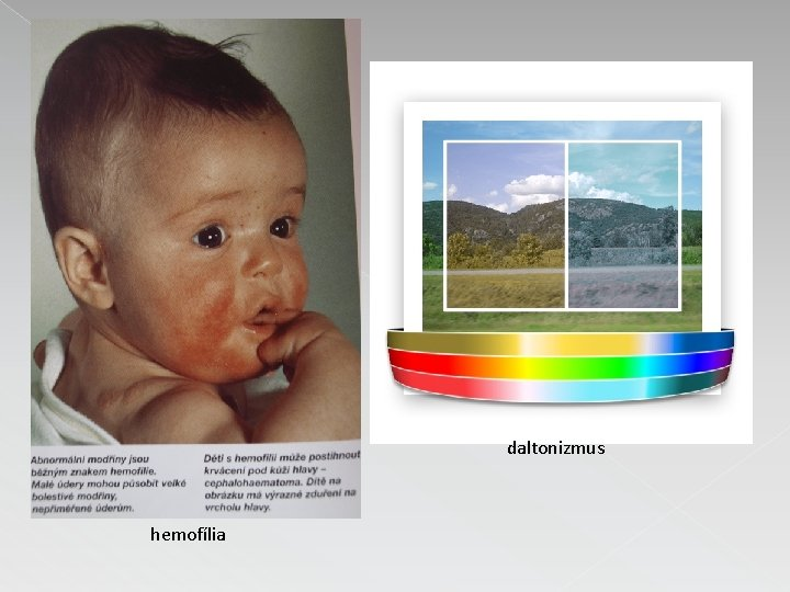 daltonizmus hemofília