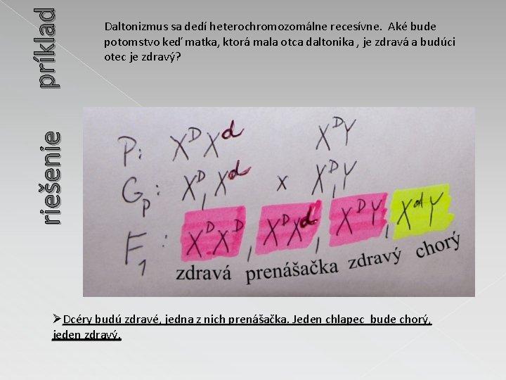 príklad riešenie Daltonizmus sa dedí heterochromozomálne recesívne. Aké bude potomstvo keď matka, ktorá mala