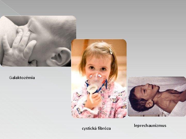 Galaktozémia cystická fibróza leprechaunizmus