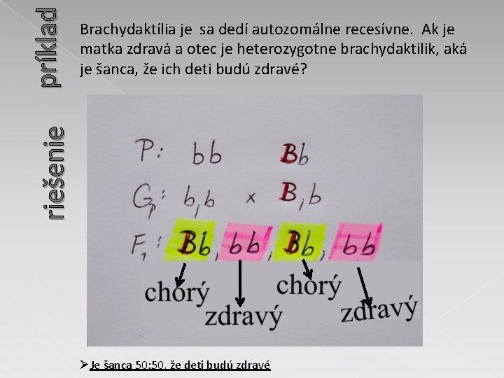 príklad riešenie Brachydaktília je sa dedí autozomálne recesívne. Ak je matka zdravá a otec