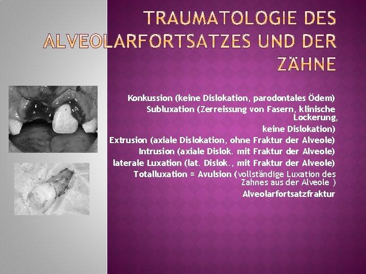 Konkussion (keine Dislokation, parodontales Ödem) Subluxation (Zerreissung von Fasern, klinische Lockerung, keine Dislokation) Extrusion