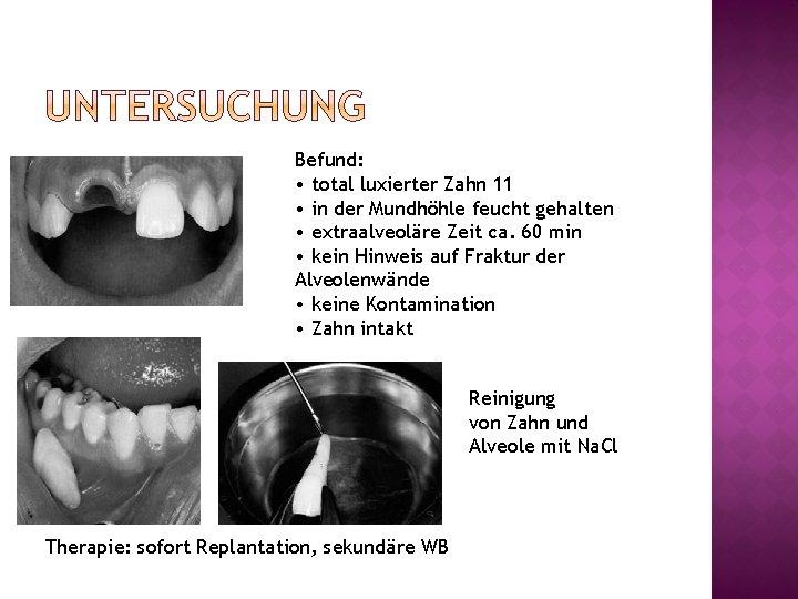 Befund: • total luxierter Zahn 11 • in der Mundhöhle feucht gehalten • extraalveoläre