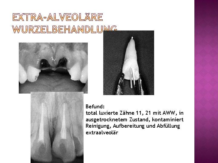 Befund: total luxierte Zähne 11, 21 mit AWW, in ausgetrocknetem Zustand, kontaminiert Reinigung, Aufbereitung