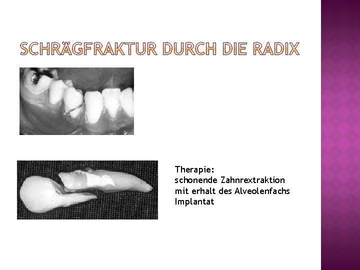 Therapie: schonende Zahnrextraktion mit erhalt des Alveolenfachs Implantat