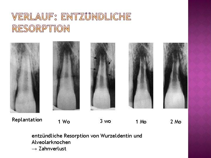 Replantation 1 Wo 3 wo 1 Mo entzündliche Resorption von Wurzeldentin und Alveolarknochen →