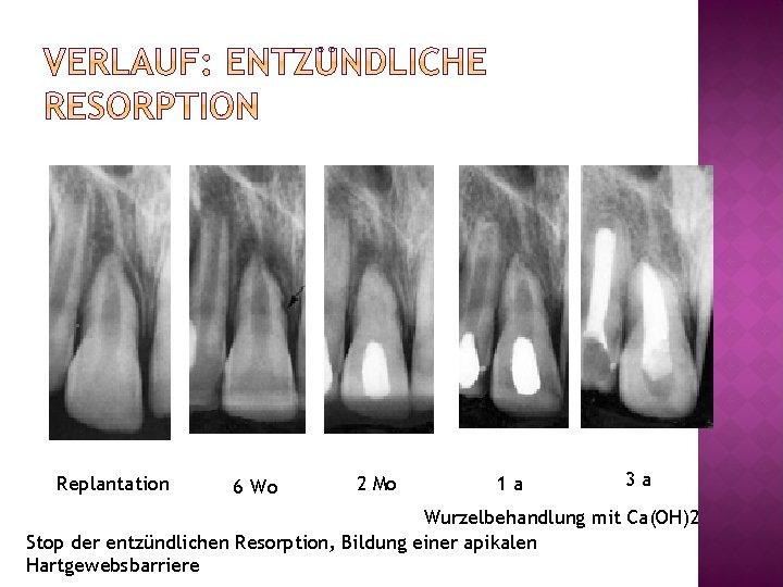 Replantation 6 Wo 2 Mo 1 a 3 a Wurzelbehandlung mit Ca(OH)2 Stop der