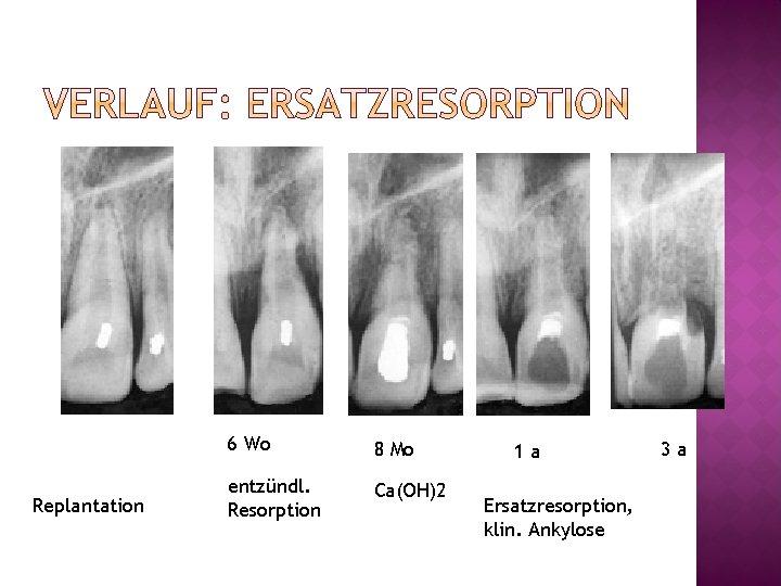 Replantation 6 Wo 8 Mo entzündl. Resorption Ca(OH)2 1 a Ersatzresorption, klin. Ankylose 3