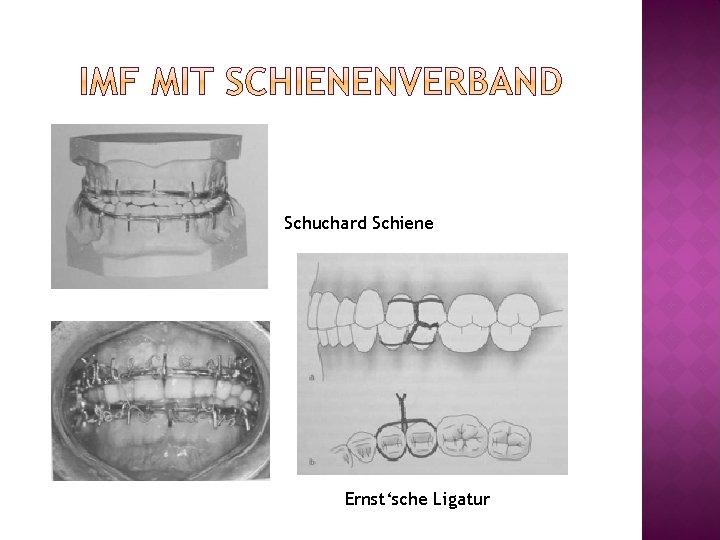 Schuchard Schiene Ernst'sche Ligatur