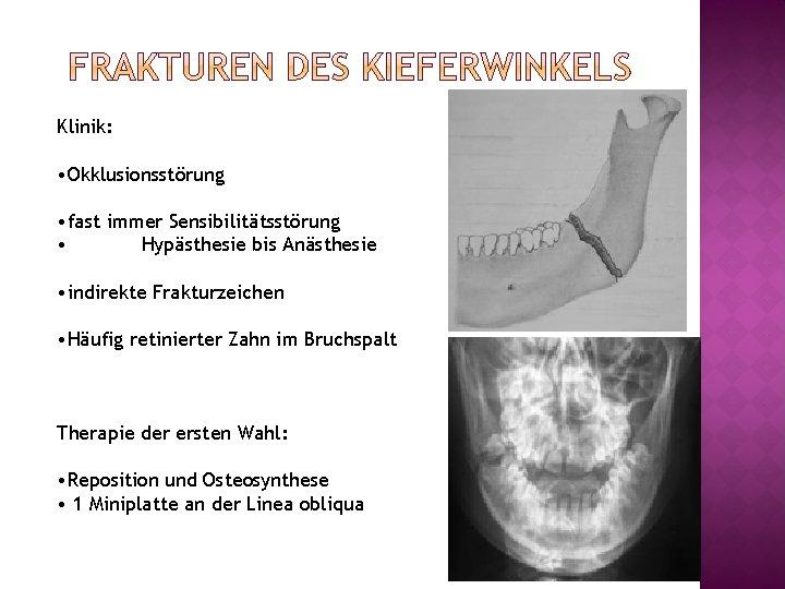 Klinik: • Okklusionsstörung • fast immer Sensibilitätsstörung • Hypästhesie bis Anästhesie • indirekte Frakturzeichen
