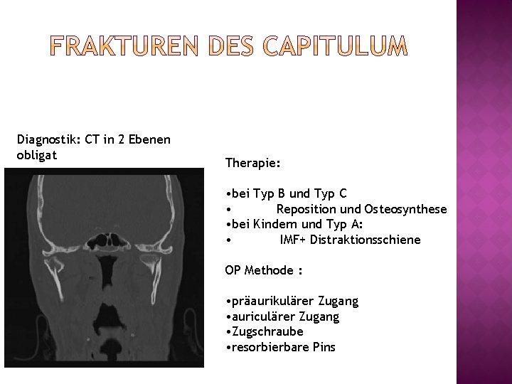 Diagnostik: CT in 2 Ebenen obligat Therapie: • bei Typ B und Typ C