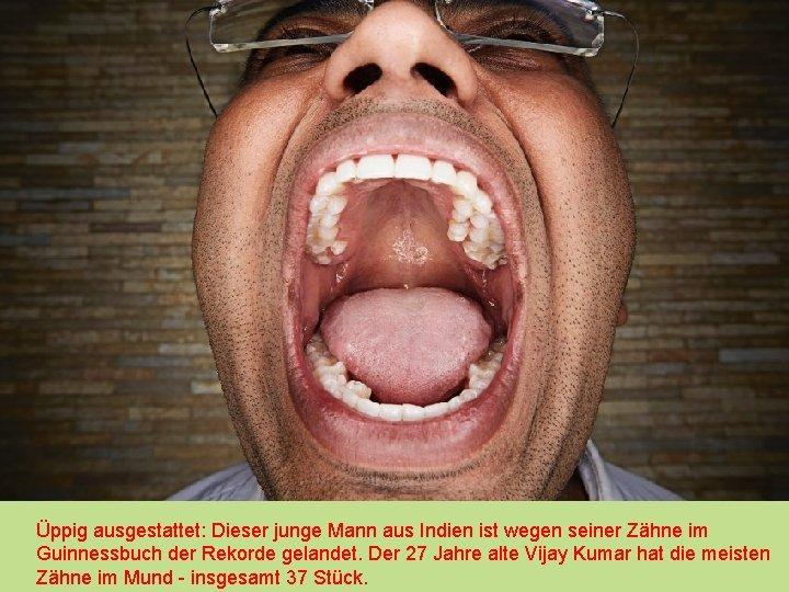 Üppig ausgestattet: Dieser junge Mann aus Indien ist wegen seiner Zähne im Guinnessbuch der