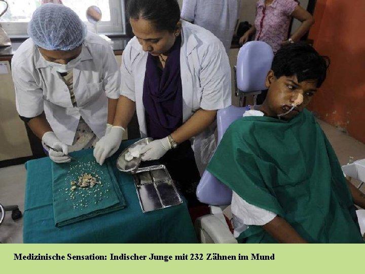 Medizinische Sensation: Indischer Junge mit 232 Zähnen im Mund