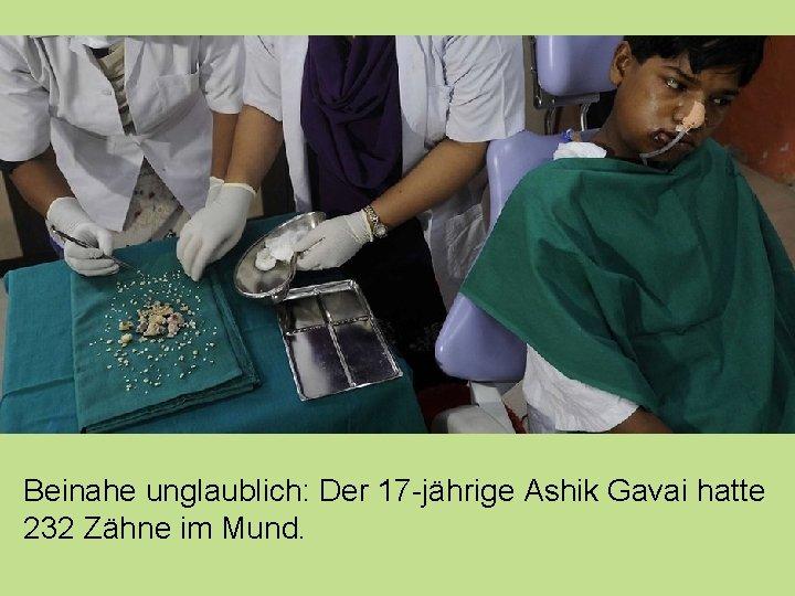 Beinahe unglaublich: Der 17 -jährige Ashik Gavai hatte 232 Zähne im Mund.
