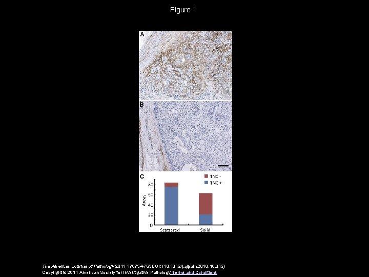 Figure 1 The American Journal of Pathology 2011 178754 -763 DOI: (10. 1016/j. ajpath.