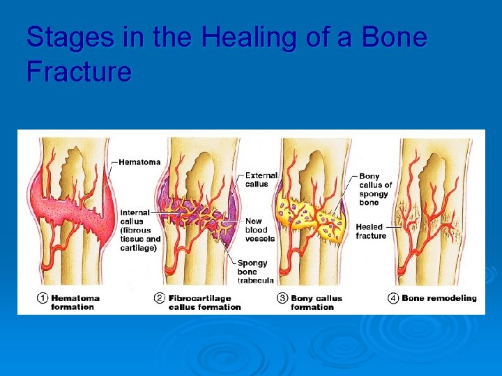 Stages in the Healing of a Bone Fracture