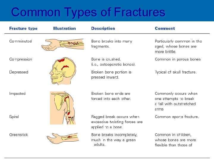 Common Types of Fractures Table 5. 2 Copyright © 2003 Pearson Education, Inc. publishing