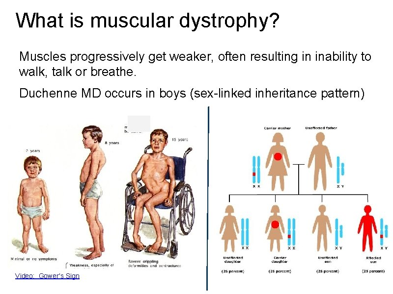 What is muscular dystrophy? Muscles progressively get weaker, often resulting in inability to walk,