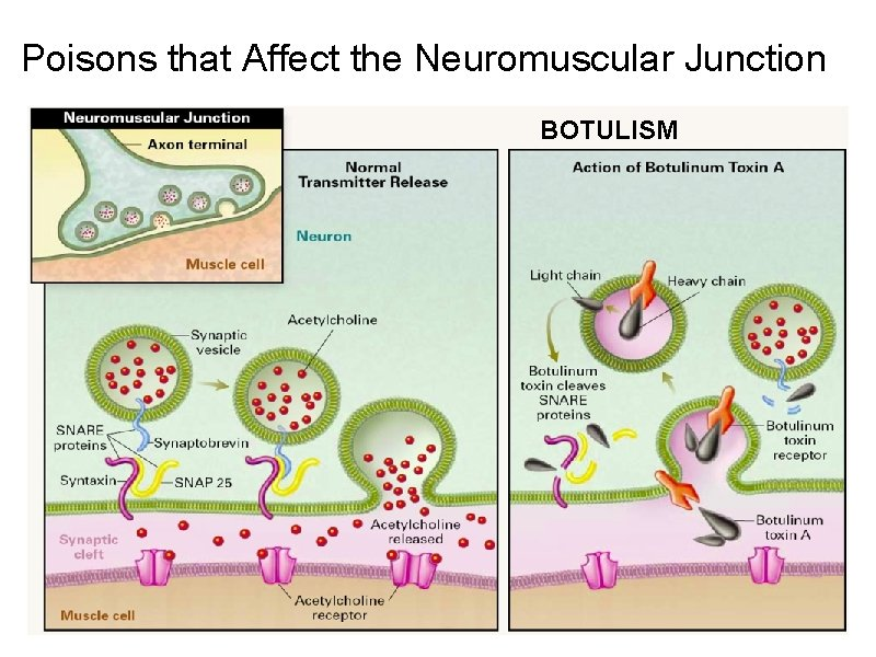 Poisons that Affect the Neuromuscular Junction BOTULISM