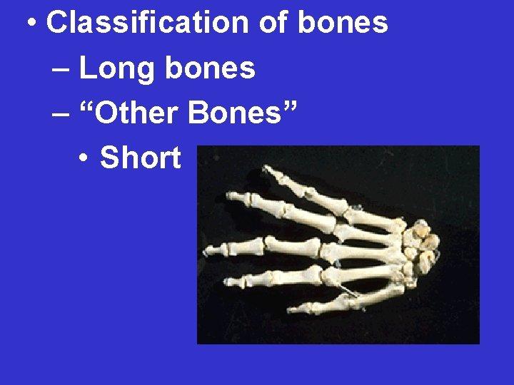 "• Classification of bones – Long bones – ""Other Bones"" • Short"