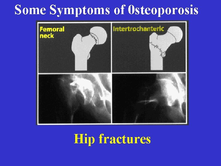 Some Symptoms of 0 steoporosis Hip fractures