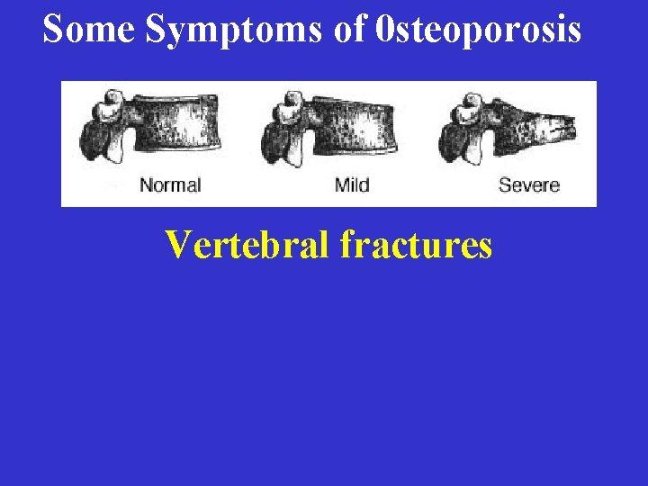 Some Symptoms of 0 steoporosis Vertebral fractures