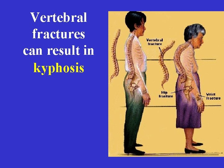 Vertebral fractures can result in kyphosis