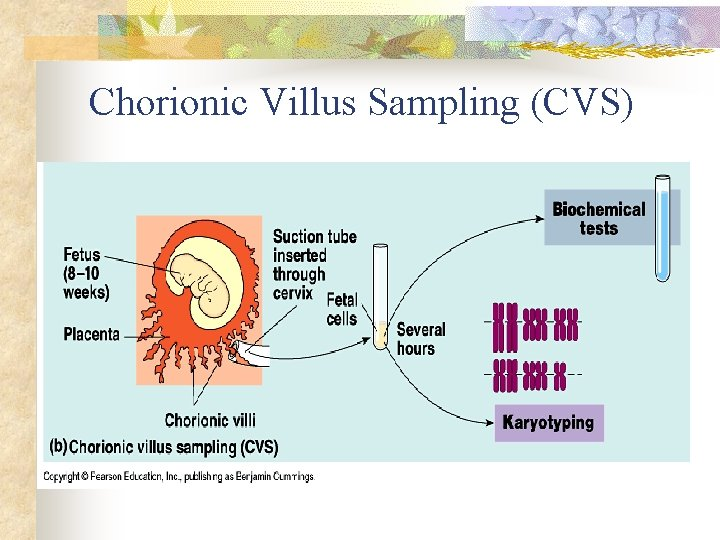 Chorionic Villus Sampling (CVS)