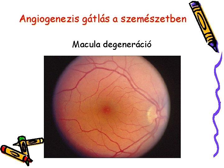fertőzések a szemészetben)