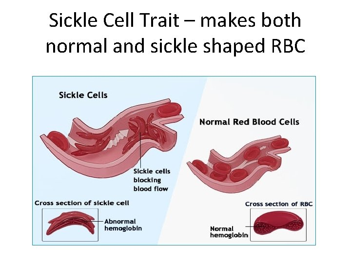 Sickle Cell Trait – makes both normal and sickle shaped RBC