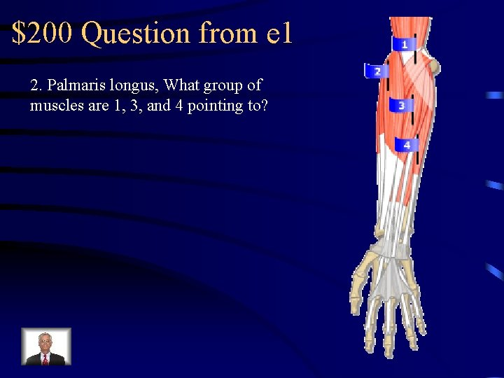 $200 Question from e 1 2. Palmaris longus, What group of muscles are 1,