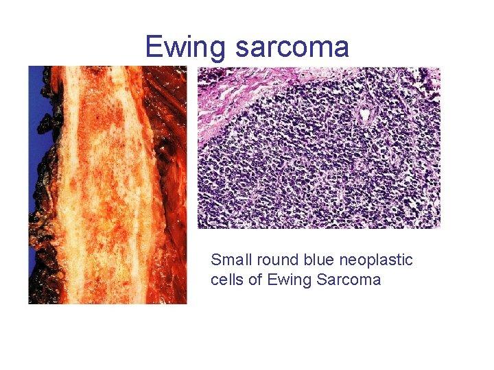Ewing sarcoma Small round blue neoplastic cells of Ewing Sarcoma