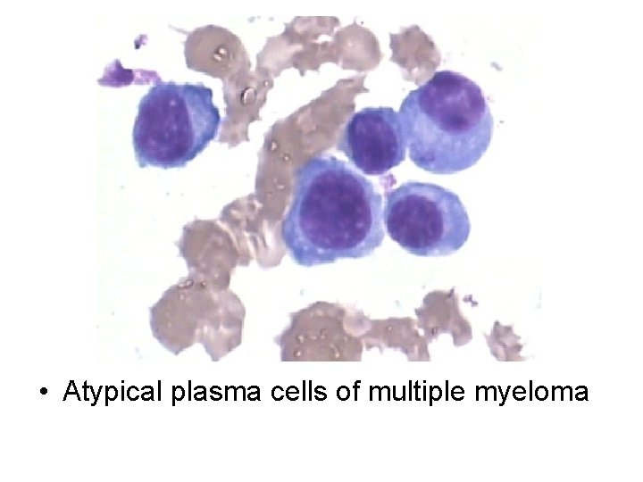 • Atypical plasma cells of multiple myeloma
