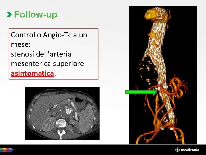 Follow-up Controllo Angio-Tc a un mese: stenosi dell'arteria mesenterica superiore asintomatica
