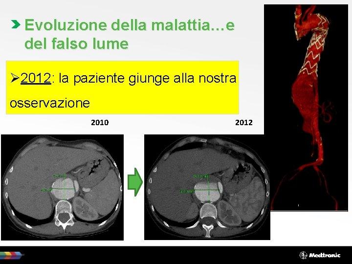 Evoluzione della malattia…e del falso lume Ø 2012: la paziente giunge alla nostra osservazione