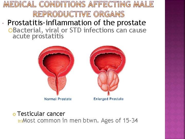 viral prostatitis Prosztata alternatíva