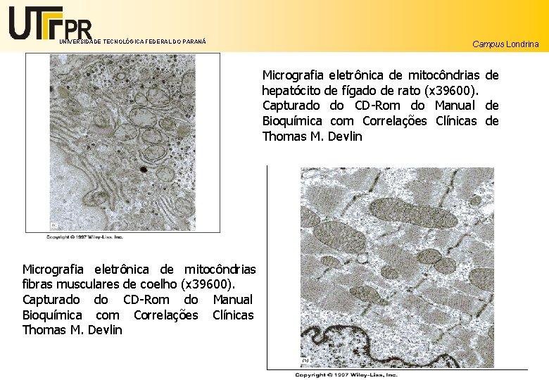 UNIVERSIDADE TECNOLÓGICA FEDERAL DO PARANÁ Campus Londrina Micrografia eletrônica de mitocôndrias de hepatócito de