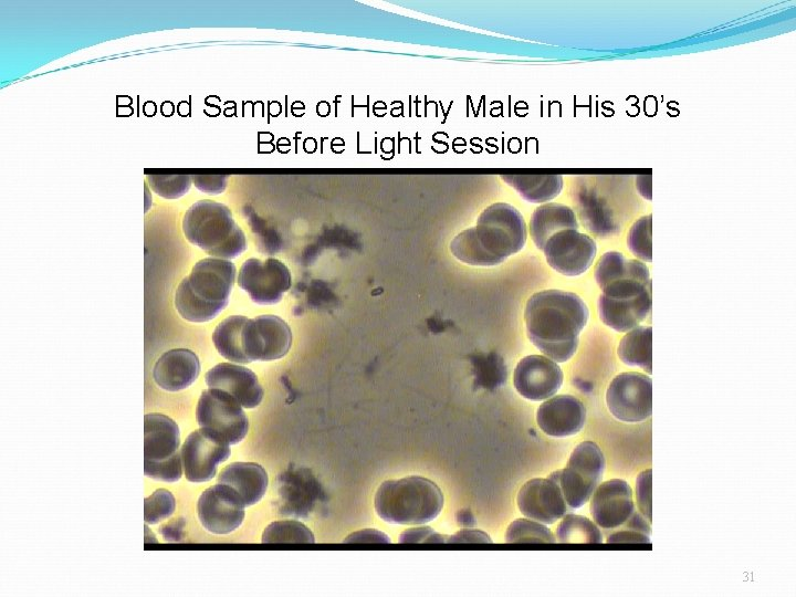 Blood Sample of Healthy Male in His 30's Before Light Session 31