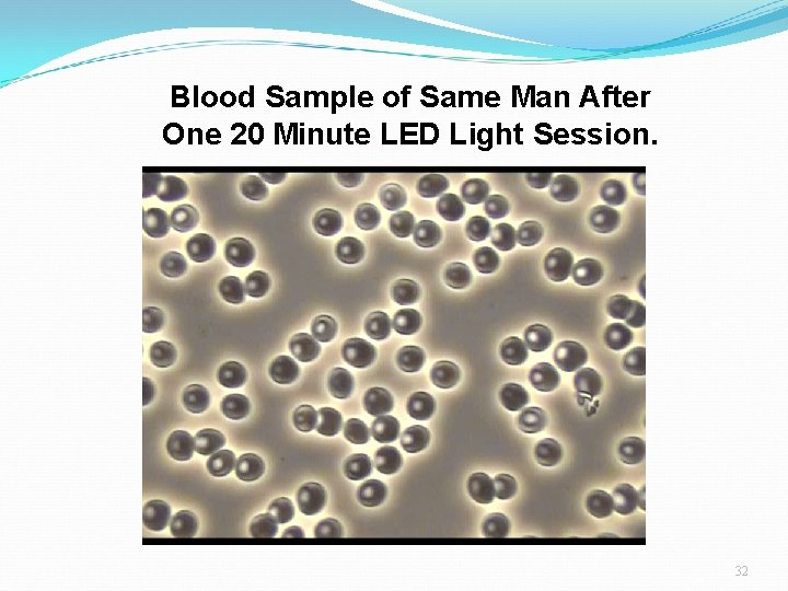 Blood Sample of Same Man After One 20 Minute LED Light Session. 32