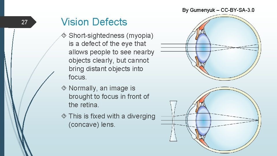 By Gumenyuk – CC-BY-SA-3. 0 27 Vision Defects Short-sightedness (myopia) is a defect of
